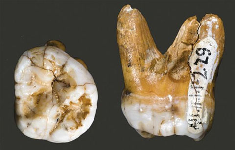 110122.new-hominid-denisovans-tooth.jpg